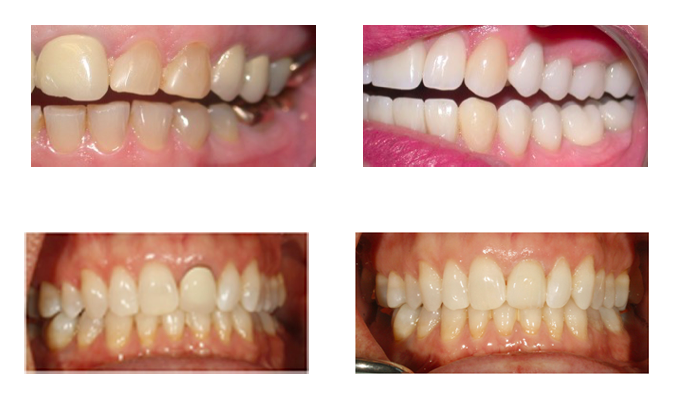 Teeth work before and after