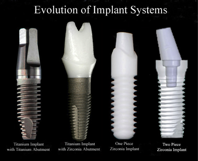 Evolution of Implant Systems